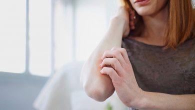 طرق لمنع انتشار الصدفيه فى الجسم فى 8 خطوات