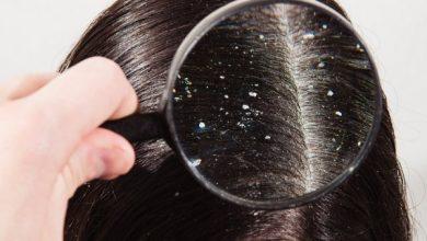 التخلص من قشرة الشعر نهائياً في الشتاء