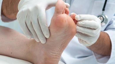 طرق علاج الكالو أو مسمار القدم واسبابه واعراضه