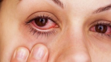 دواء اوكولوتوب لعلاج الالتهابات البكتيرية من العيون والالتهابات الجلدية Oculotob