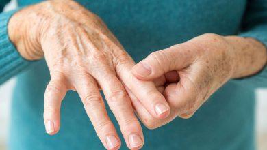 صورة كريم اكيوكورت لتخفيف وعلاج علامات التهاب المفاصل مضاد للالام الروماتيزمية