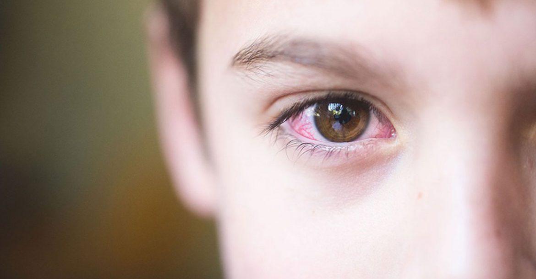 اقراص بريديلون لعلاج اعراض الحساسية مثل الحكة والانتفاخ والتورم predilone