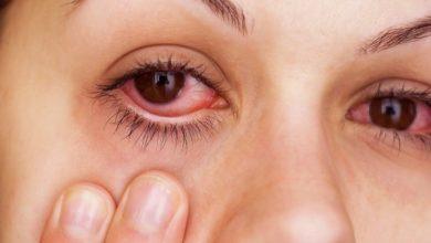 قطرة ومرهم توبراليكس لعلاج التهابات العين الخارجية مثل التهاب الملتحمه