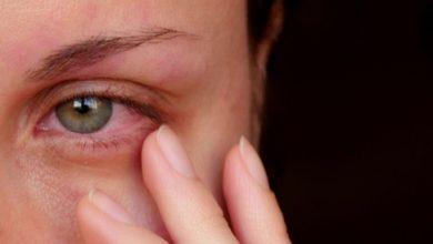 قطرة توبراميسين مضاد حيوي لعلاج الالتهابات في العين الخارجية Tobramycin