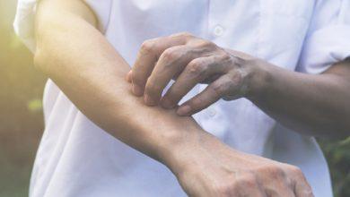 كريم زيماديرمين لعلاج التهابات الجلد والطفح الجلدى والحكة Zemadermin