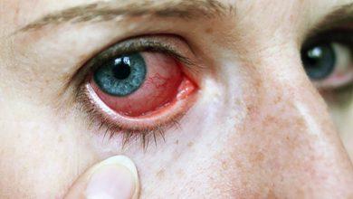 قطرة سامولجين مسكن و مضاد لإلتهابات العين فى حالات الكدمات و الألم SAMULGIN