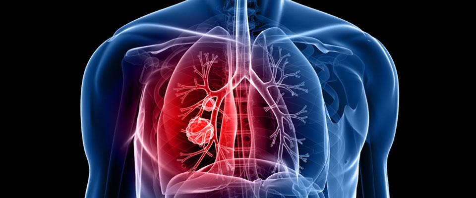 سرطان الرئة أخطر انواع السرطان والأكثر شيوعاً تعرف علي انواعه واسبابه واعراضه