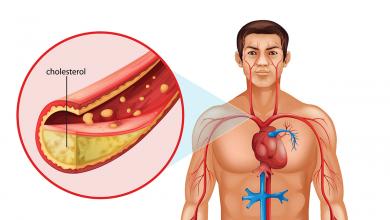 صورة ارتفاع الكوليسترول من اخطر الامراض التي تهدد الصحة تعرف علي افضل الادوية لعلاجها
