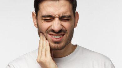 صورة افضل ادوية مسكنة لالام الاسنان وتعرف علي اسباب الاصابة بها