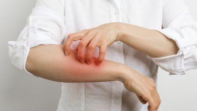 صورة اهم وابرز انواع الادوية المعالجة للفطريات والالتهابات الجلدية السطحية