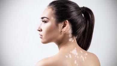 صورة ابرز الادوية الفعالة لعلاج مرض البهاق الجلدي أو ما يسمي بالبرص الجلدي
