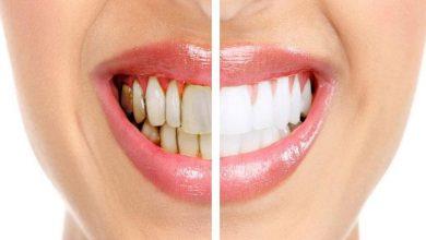 تسوس الاسنان له مضاعفات خطيرة علي الاسنان فما هي افضل المستحضرات لمحاربة التسوس