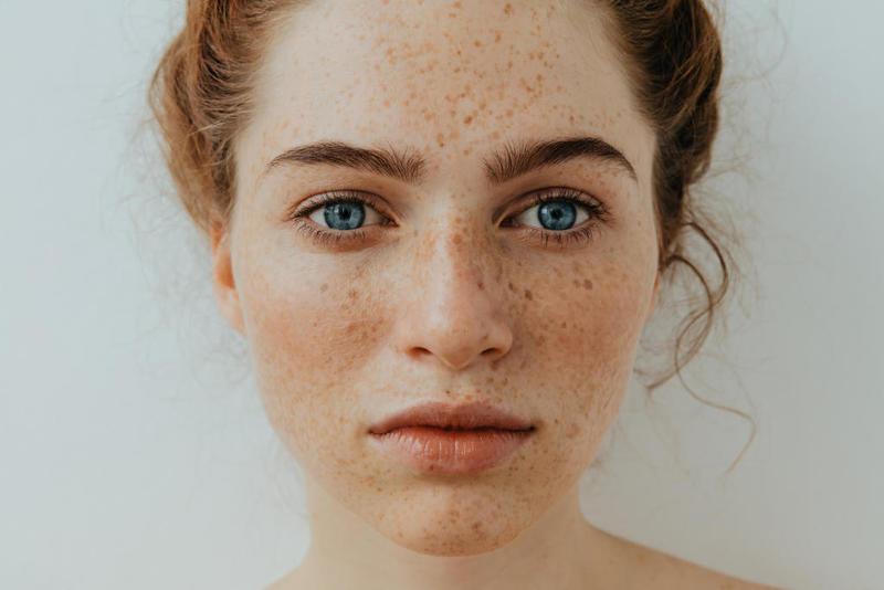 افضل كريمات طبية للتخلص من نمش الوجه وازالة النمش نهائياً