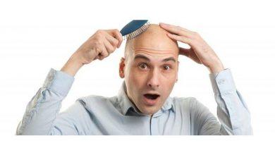 افضل الادوية الفعالة لعلاج الصلع لدي الرجال والنساء والحد من تساقط الشعر والصلع الوراثي