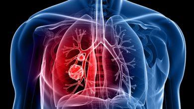 صورة أهم الادوية الفعالة المضادة للتخثر لعلاج جلطة الرئة التي تهدد الحياة