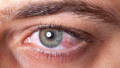 التهابات العين المرض اكثر شيوعا تعرف علي اسباب الاصابة بها وكيفية الوقاية منها