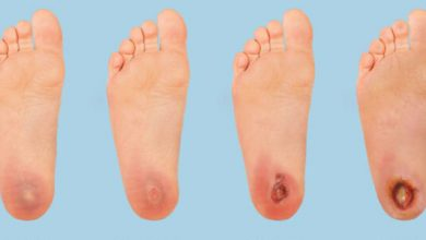 أهم الادوية الفعالة لعلاج القدم السكري وافضل النصائح للوقاية من الاصابة بالقدم السكري