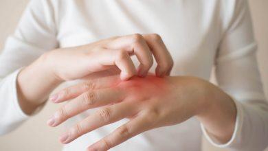 أبرز الادوية لعلاج الامراض الجلدية الشائعة كمرض الصدفية الجلدي وما هي اعراضه