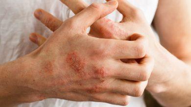 صورة افضل الادوية لعلاج الالتهابات الجلدية والتخلص من مرض الاكزيما الجلدي
