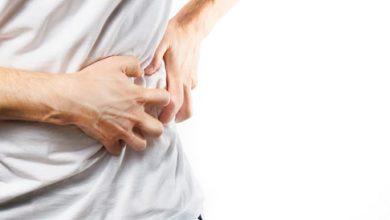 صورة تعرف علي افضل الادوية لعلاج حصوات الكلي وزيادة الاملاح واحتباس السوائل في الجسم