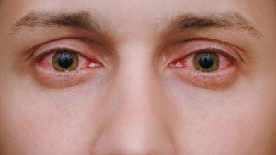 صورة تعرف علي افضل انواع القطرة التي تعالج حساسية العين و اعراض الاصابة بها