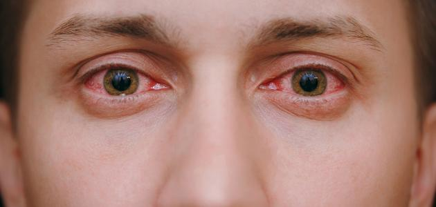 تعرف علي افضل انواع القطرة التي تعالج حساسية العين و اعراض الاصابة بها