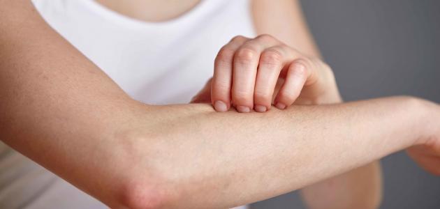 الجمرة الخبيثة تعرف علي تفاصيل الاصابة بالمرض و كيفية الوقاية و افضل الادوية المعالجة