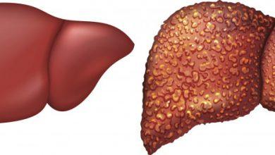 مرض تليف الكبد تعرف علي اسباب الاصبة بة واعراضة وكيفية علاجة والوقاية منة