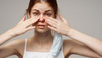 تعرف علي اسباب الاصابة بمرض تهيج العين و افضل الادوية المعالجة له