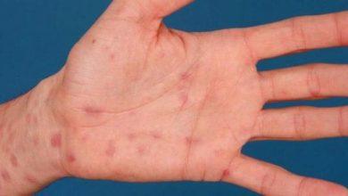 مرض الزهري تعرف علي اسباب الاصابة بة وافضل الادوية المعالجة لة