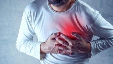 صورة النوبة القلبية تهدد الحياة تعرف علي اسبابها واعراضها وطرق علاجها ومدي خطورتها