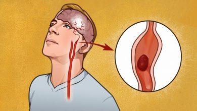صورة أفضل انواع الادوية المعالجة لحالات السكتات الدماغية وما هي اعراض الاصابة بها