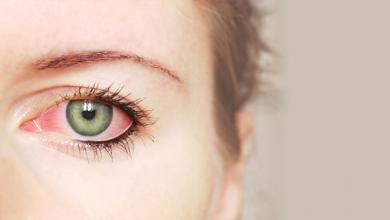 صورة التهابات العين البكتيرية ما هي انواعها وافضل طرق الوقاية منها