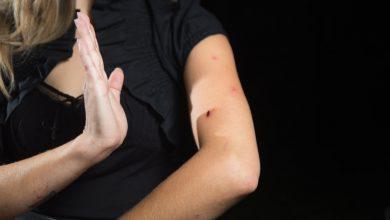 صورة الاسعافات الاولية للتخلص فوراً من التورم الناتج عن لدغ الحشرات