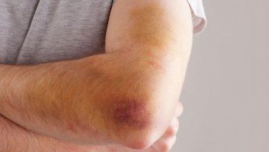 كدمات الجسم تعرف علي اسباب الاصابة بها وافضل الادوية المعالجة لها