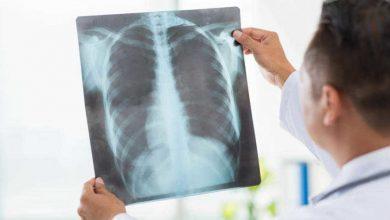 صورة الالتهاب الرئوي ما اسبابه وأبرز اعراضه وأفضل طرق العلاج وكيفية الوقاية منه