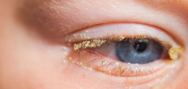 اسباب ظهور عماص العين وما افضل طرق علاجه وأهم النصائح لوقاية العين