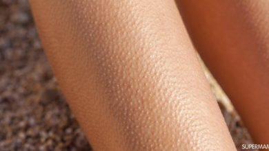 تعرف على اسباب جلد الوزه وافضل الطرق الفعاله للتخلص منها