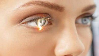 التعرف على مرض المياه الزرقاء فى العين و اعراضها و افضل الادويه علاجها