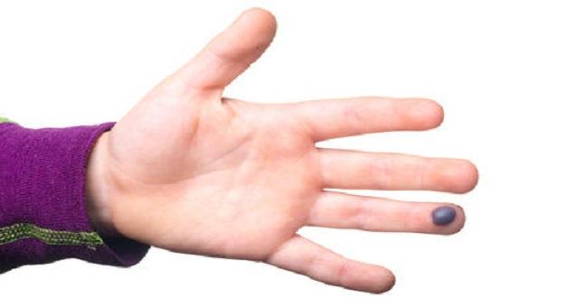 التجمعات الدموية تحت الجلد اسبابها وكيفية التخلص منها بأفضل الطرق