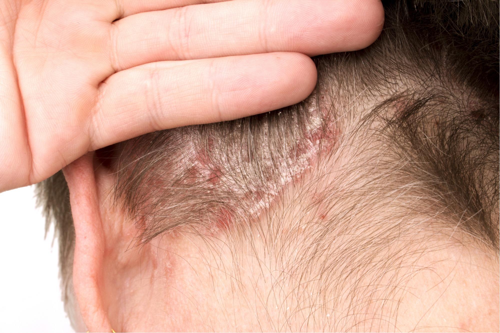 صدفية الرأس و التعرف على اسبابها و افضل الطرق لعلاجها