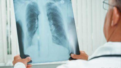 تعرف علي مرض الالتهاب الرئوي المكتسب من المجتمع وأفضل الادوية لعلاجه