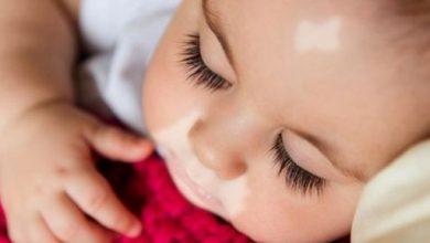هل يعتبر البهاق مرضاً وراثياً ؟ اليك أهم طرق وقاية طفلك من الاصابة بمرض البهاق