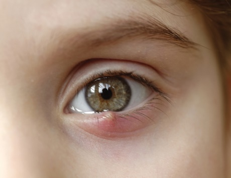التعرف على اسباب ظهور حبوب فى العين وافضل الادويه لعلاجها
