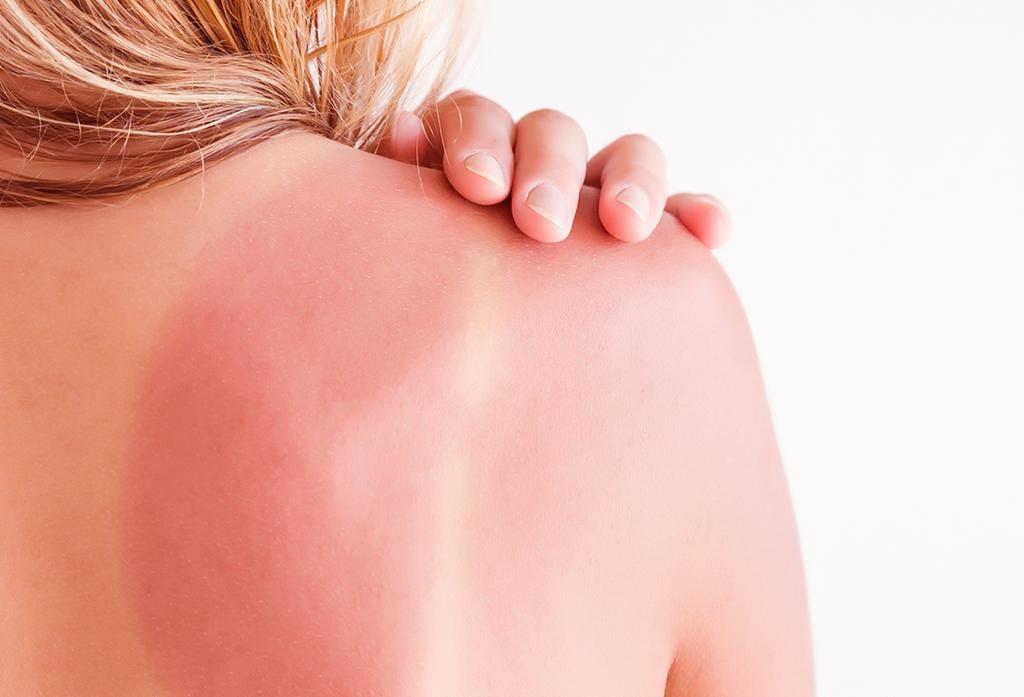 التعرف على افضل الادويه و الكريمات التى تحمى من حروق الشمس والتهاب الجلد