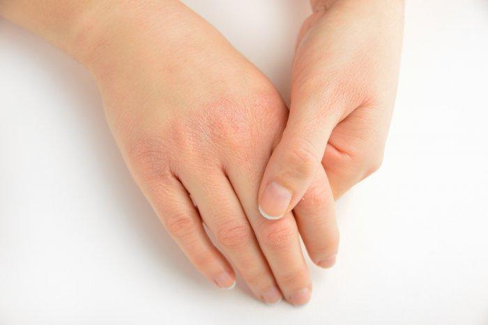أفضل الطرق للتخلص من تشقق اليدين وأهم النصائح للوقاية من جفاف وخشونة اليدين