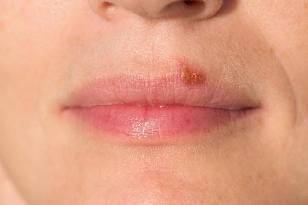 فيروس الهربس البسيط تعرف علي اسباب الاصابة به وأفضل الادوية الفعالة لعلاجه