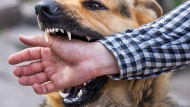 صورة تعرف علي كيفية التعامل مع عضات الحيوانات والاسعافات الاولية لتجنب الاصابة بالعدوي