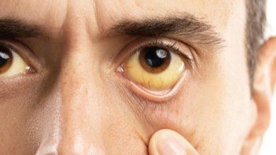 صورة التعرف على مرض الصفراء و اعراضه واسبابه و كيفيه علاجه
