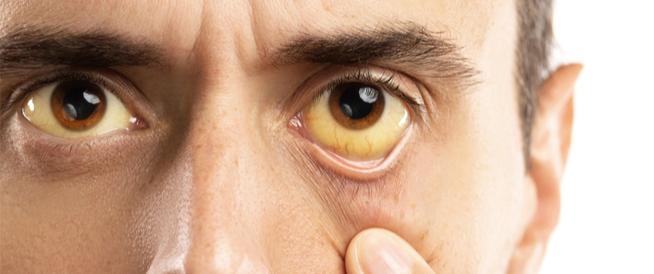 التعرف على مرض الصفراء و اعراضه واسبابه و كيفيه علاجه